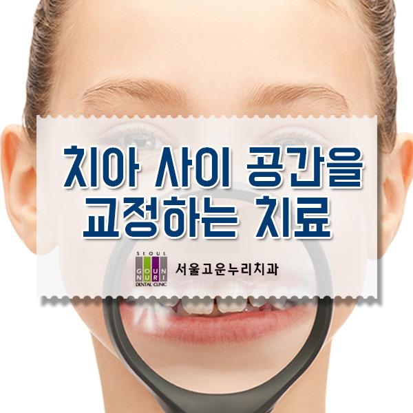 은평구치아교정, 치아사이 공간 교정치료 방법